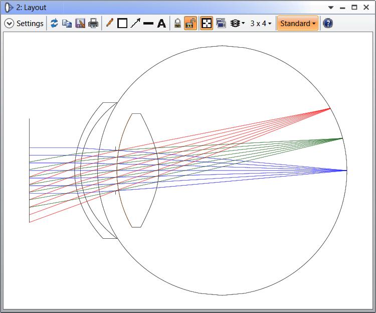 The Eye_Retinal Image model