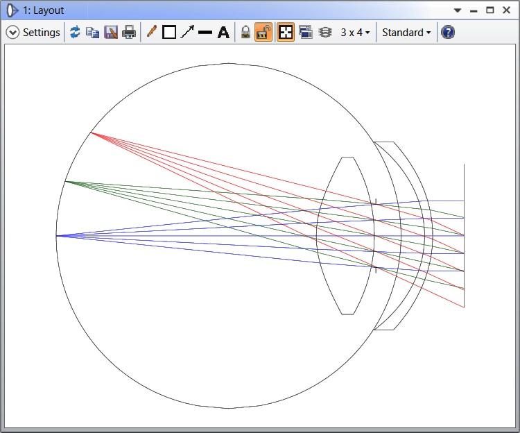 the Eye_Retinal Object model